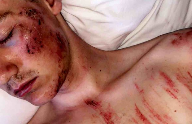 Grave caída de Simon Andreassen probando el circuito de Stellenbosch