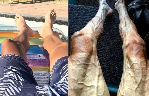 Qué le suceden a las piernas de los ciclistas en el Tour de Francia