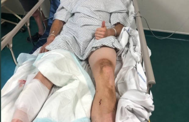 This cyclist suffered a serious injury in Paris Roubaix U-23 because of a disc rotor