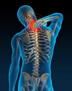 dolor-cuello-610x762